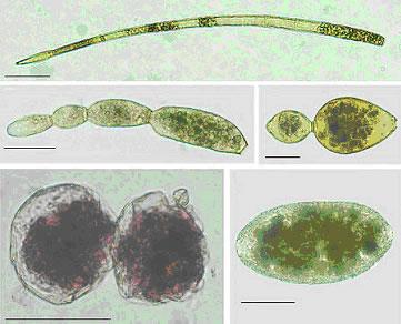新種の有孔虫の一部